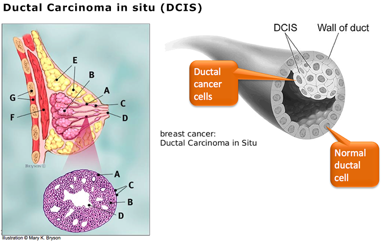 Your phrase Dcis and breast cancer sorry, not
